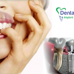 dental-care-treatment