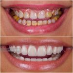 zenith-dentistry-clinic-full-mouth-scaling